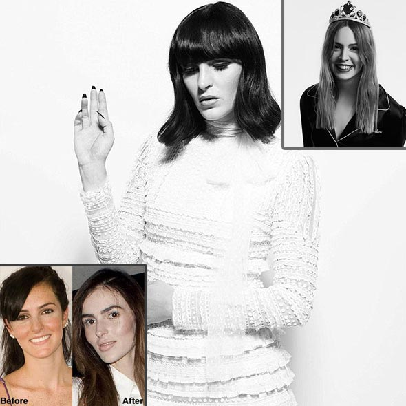 Model Ali Lohan's Boyfriend: Making Her Own Mark, Looks Very Different, Plastic Surgery?