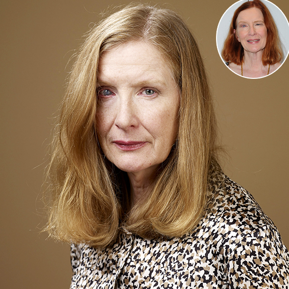 Frances Conroy and All The Quires Related To The Accident That Caused Her One Eye To Be Different Has Been Revealed