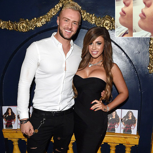 While Prolifically Dating Her Boyfriend, Holly Hagan Gets Lashed Out For Before And After 'Chin' Picture