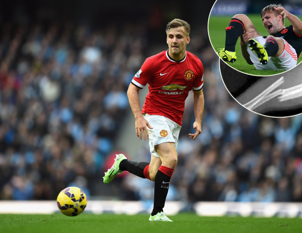 Luke Shaw's Fitness Issue After Injury On The Field; Denies Gay Rumors For Good
