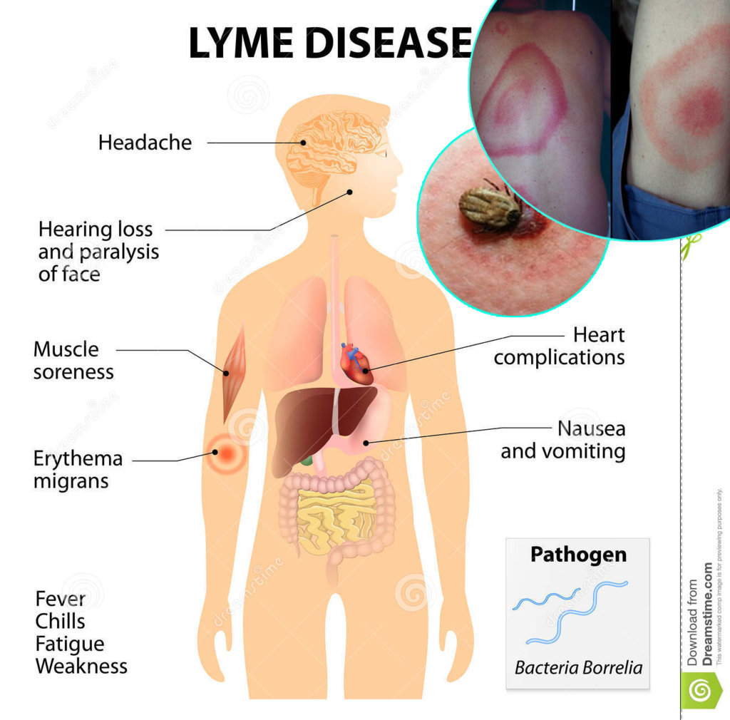 What Is Lyme Lyme Disease? Effects Of Lyme Disease In Children And In Dogs