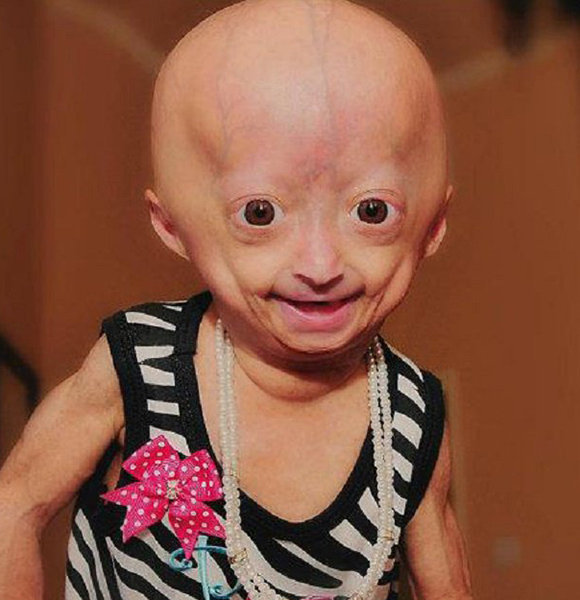 dalia rose  Adalia Rose Wiki: 11 y.o Has A Story to Tell – Is Not Dead!